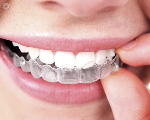 Los dos tipos principales de ortodoncia invisible son Invisalign y ortodoncia lingual