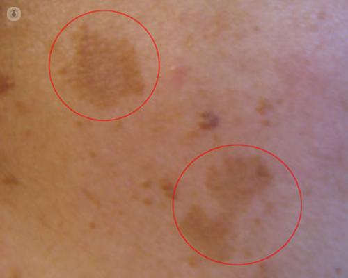 infecciones de la piel - Top Doctors