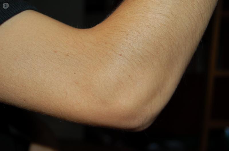 El codo es la articulación del brazo que permite los movimientos de extensión y flexión del brazo - Top Doctors