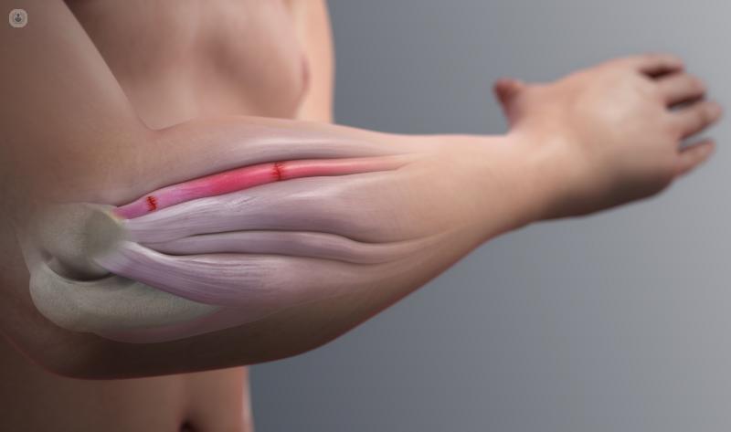La artroscopia de codo es una técnica mínimamente invasiva con mejores resultados y menor agresividad para la articulación - Top Doctors