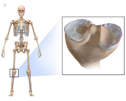 Los meniscos actúan como almohadillas que amortiguan el peso del cuerpo y las presiones - Top Doctors