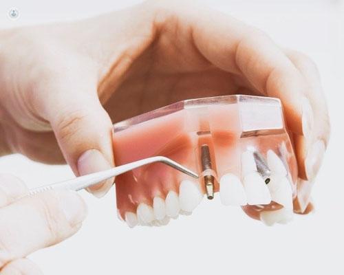 El injerto de hueso dental permite realizar implantes dentales en pacientes con poca base de hueso - Top Doctors