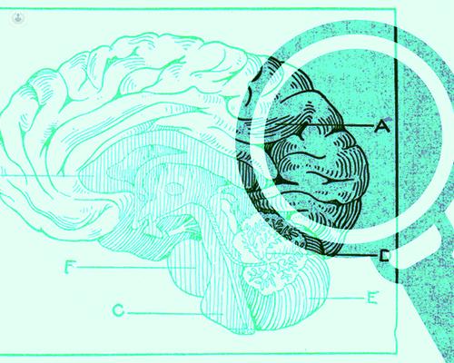 Los trastornos mentales afectan a los procesos afectivos y cognitivos, al estado de ánimo, el pensamiento y el comportamiento - Top Doctors