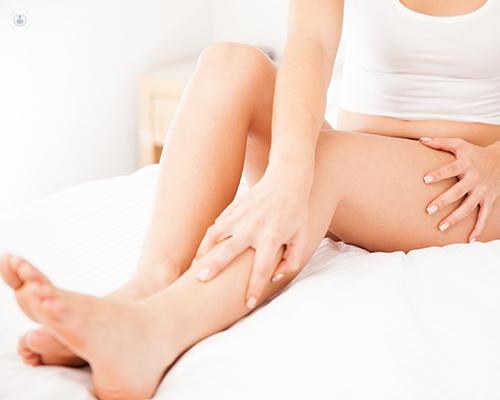 Mujer tocándose las piernas - Arañas vasculares - by Top Doctors